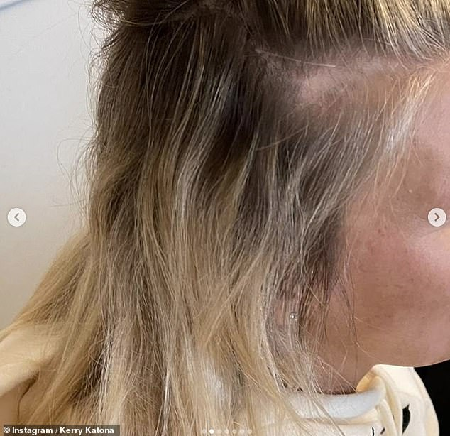 Hair loss:Kerry Katona has revealed that she's starting to go bald after using hair extensions for many years which has left her locks 'fine and wispy'